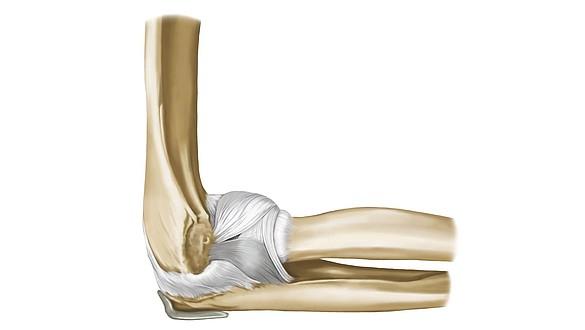 Ellbogen - Anatomie und Symptome