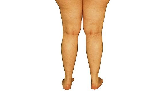 Lipödem Beine: Krankheiten und Beschwerden -