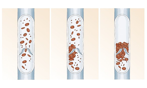 Thrombose - Tiefe Beinvenenthrombose